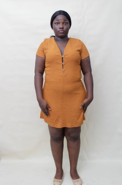 Mustard buttoned dress